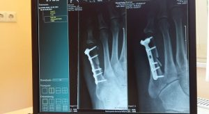 Röntgenprüfung